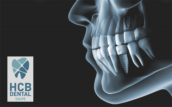 implantes-dentales-hcb-dental-calpe